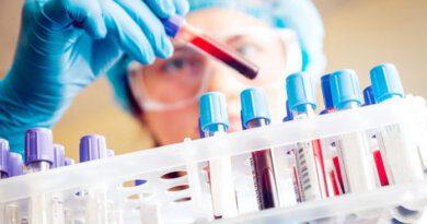 Найдено устройство, определяющее наличие коронавируса на 100 процентов